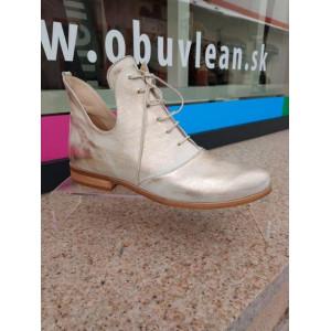 Dámske metalické topánky
